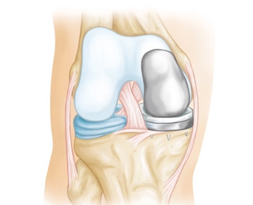 illustration of partial joint replacement